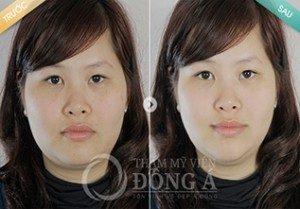 Theo chân chị Diệu Huyền đi điều trị tàn nhang tại Đông Á