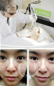Trị sạch tàn nhang sau 1 lần thực hiện với Yellow Laser