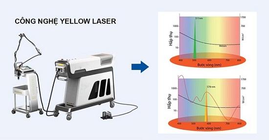 Yellow Laser loại bỏ tối ưu tàn nhang mà không gây tổn thương da