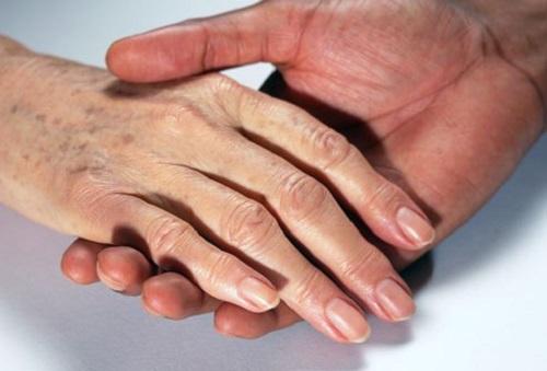 7 cách trị tàn nhang ở tay hiệu quả tại nhà