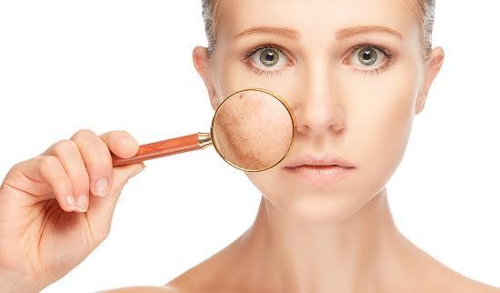 Bản chất của tàn nhang và cách chữa trị hiệu quả?