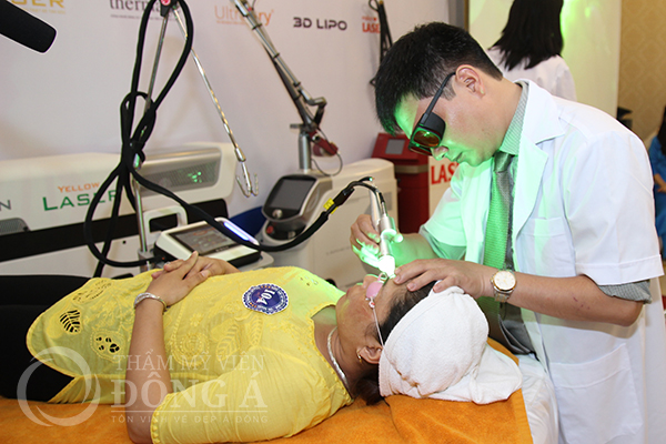 Trị tàn nhang ở má bằng công nghệ laser