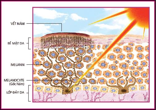 Quá trình hình thành tàn nhang từ sắc tố Melamin