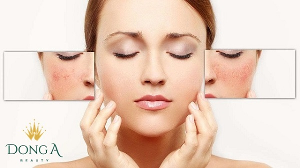 cách làm mờ tàn nhang trên mặt