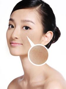 Tăng sinh melanin vượt mức – nguyên nhân của tàn nhang