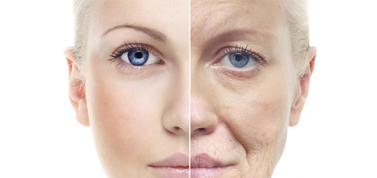 khi da bị lão hóa, tàn nhang xuất hiện nhiều hơn