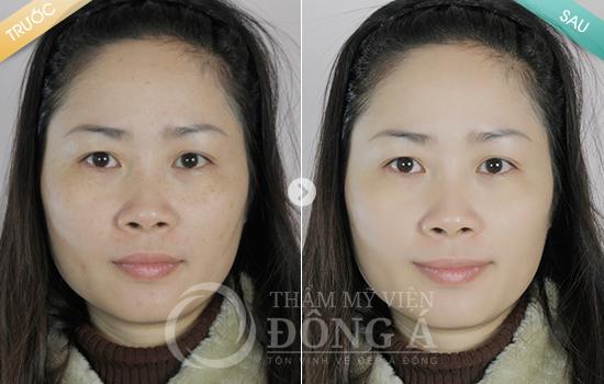 Chị Nguyễn Lan Chi – Trị tàn nhang tại TMV Đông Á cách đây 3 tháng