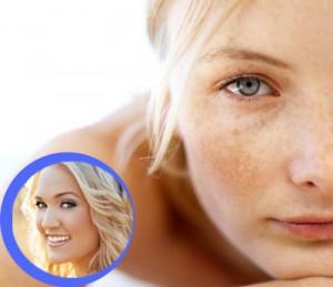 Cách làm hết tàn nhang trên mặt nhanh chóng – Chỉ với 1 liệu trình ngắn