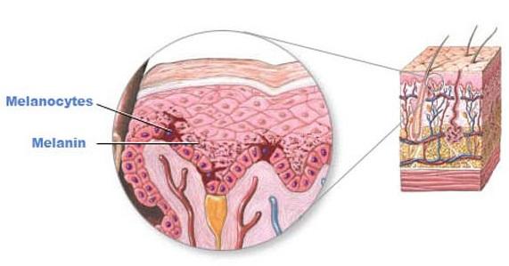Ánh nắng mặt trời tác động, làm melanocytes sản sinh nhiều hắc sắc tố melamin trên bề mặt da