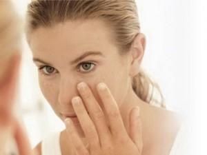 Làm sao để hết tàn nhang trên mặt mà vẫn an toàn?