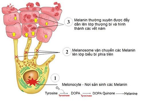 Cơ chế hình thành hắc sắc tố melamin