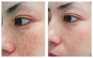 Sau trị tàn nhang Yellow Laser – Advanced, da có bị bong đỏ không?