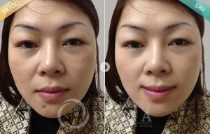 Vì sao Yellow Laser – Advanced vừa trị tàn nhang vừa làm trắng hồng da?