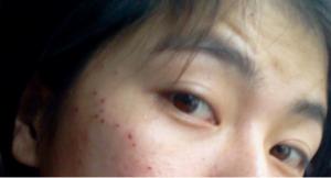 Da bị bong đỏ sau điều trị tàn nhang có nguy hiểm không?