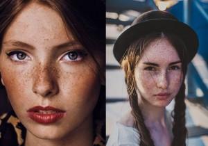 Bạn có biết vì sao có tàn nhang xuất hiện trên mặt?