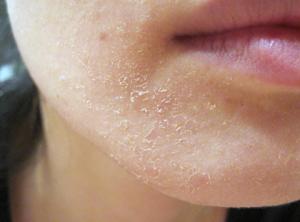 Sau trị tàn nhang da có hiện tượng đóng vảy thì phải làm sao?