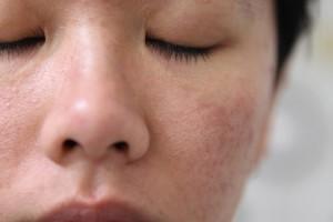 Yellow Laser điều trị tàn nhang có làm se khít lỗ chân lông?
