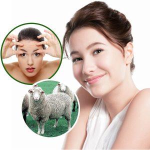 Trị tàn nhang bằng nhau thai cừu có thật sự hiệu quả?
