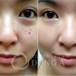 Yellow laser – Advanced: Xóa sạch 100% tàn nhang chỉ sau 1 lần điều trị