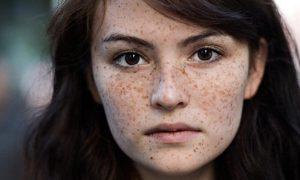 Trị tàn nhang di truyền bằng cách nào mới khỏi?