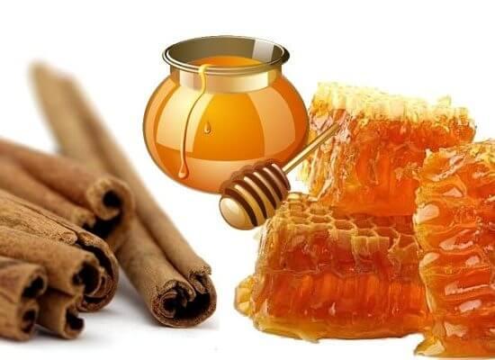 Cách trị nám tàn nhang trên mặt bằng mật ong và bột quế tại nhà hiệu quả