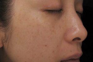 Chữa trị tàn nhang bằng laser có gây sẹo không thưa bác sĩ?