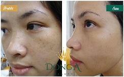 Hình ảnh trước và sau trị tàn nhang