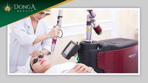 Chuyên gia giải đáp: Có nên trị nám bằng laser? Trị nám bằng laser có an toàn? 1
