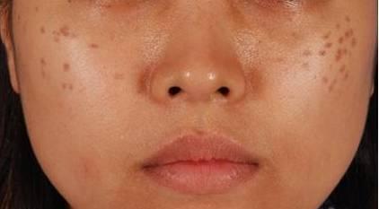 Cách trị đồi mồi trên da mặt nhanh chóng hiệu quả tới 98% 1