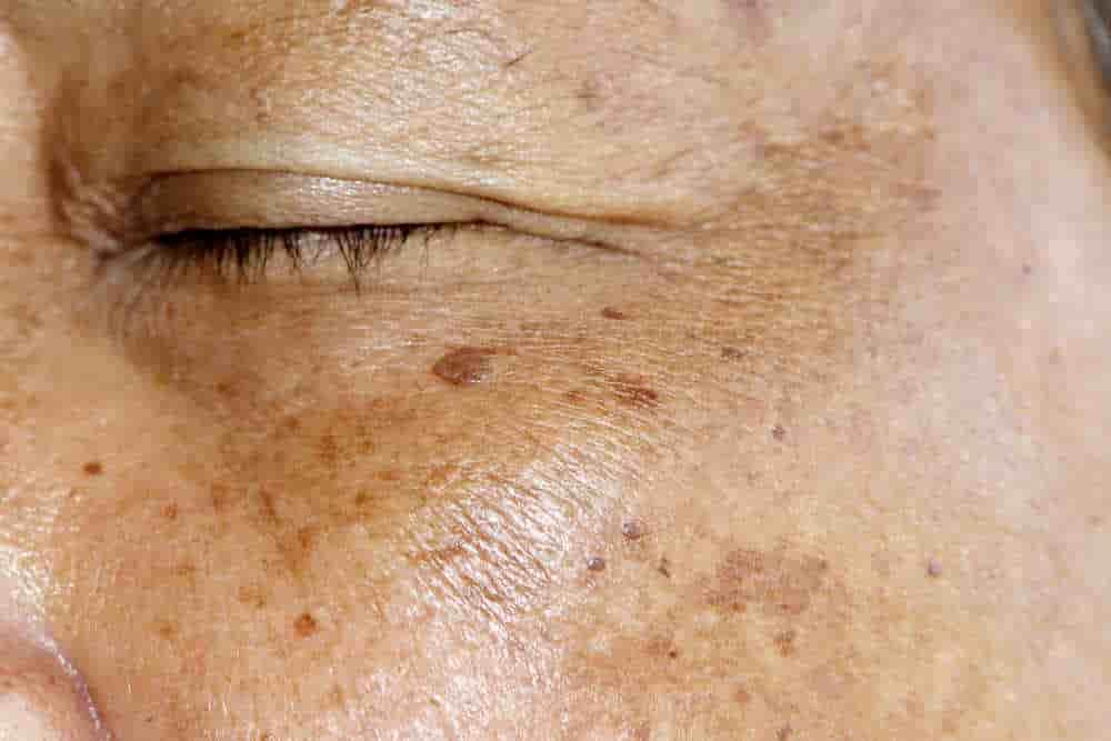 Cách trị đồi mồi trên da mặt nhanh chóng hiệu quả tới 98% 2