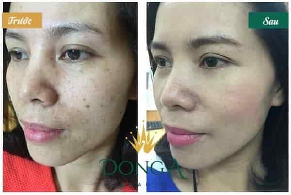 Cách trị đồi mồi trên da mặt nhanh chóng hiệu quả tới 98% 5
