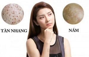Da mặt bị đốm nâu là triệu chứng của bệnh gì? Cách chữa trị thế nào?