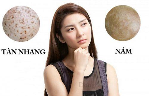 Da bị đốm nâu là triệu chứng của bệnh gì? Cách chữa trị thế nào?