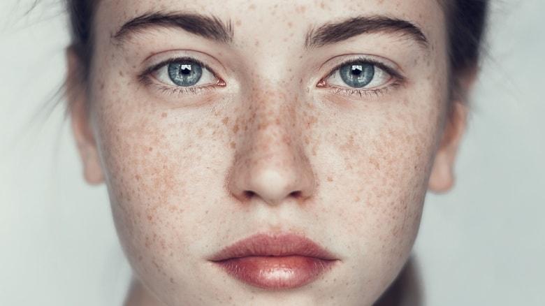 Serum trị tàn nhang nào tốt, hiệu quả nhanh và an toàn nhất cho da?